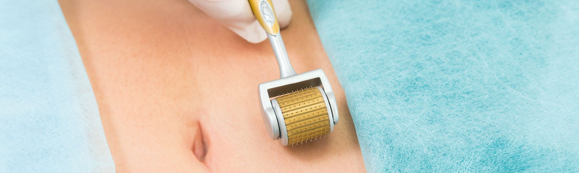 The Dermaroller may be the solution for your stretch marks