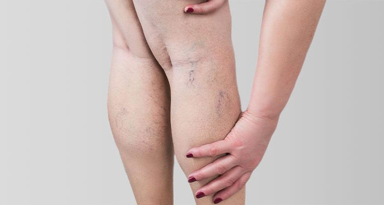 Your Spider Veins could Benefit from Sclerotherapy at North West Aesthetics