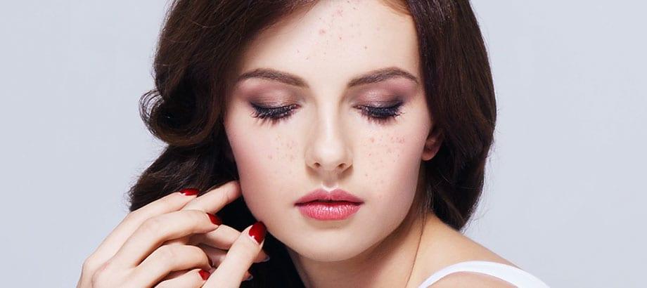 Skin Congestion