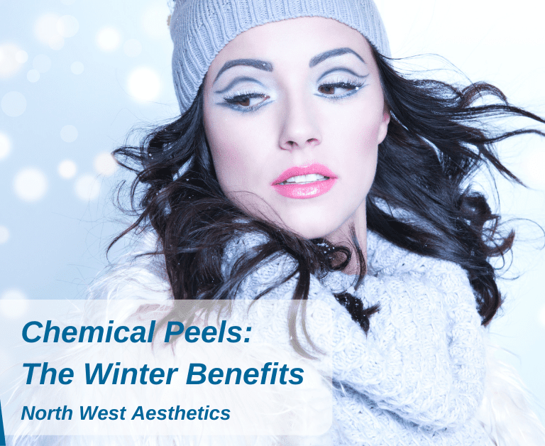 Chemical Peels: The Winter Benefits