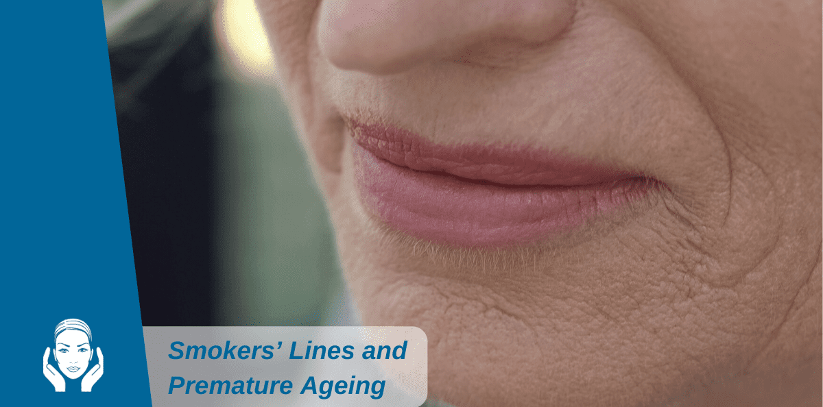 Smokers' Lines and Premature Ageing: Make Your New Year's Resolutions Now!
