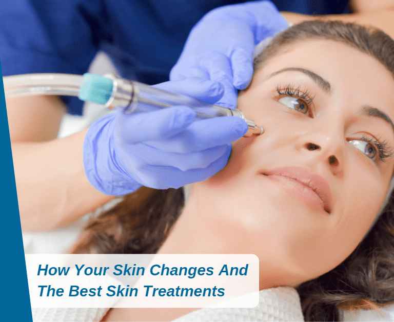 How Your Skin Changes And The Best Skin Treatments